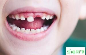 儿童换牙时期的饮食原则