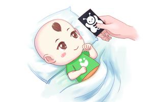 婴儿头后仰原因是什么